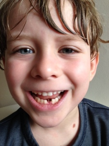 Toothless 1.0: Caleb finally achieves the mark of pride he's been looking for since starting first grade.